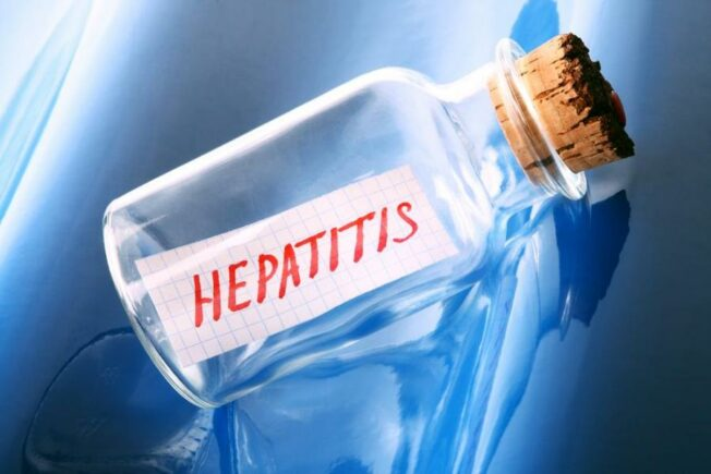 Symptoms and Diagnosis of Hepatitis C
