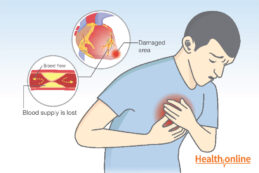 Prevalence and pathology of heart attack
