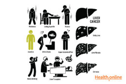 Signs and Symptoms of Liver Cancer